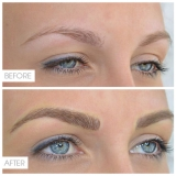 Microblading (Eyebrow Tattoo)